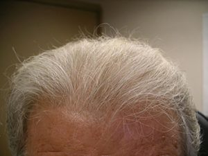 hair transplants appleton wi